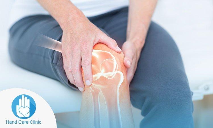علاج التهاب المفاصل الركبة